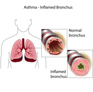 The bronchial tubes of healthy person and a person suffering from bronchial asthma. Medical poster.